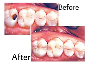 dental filling pune